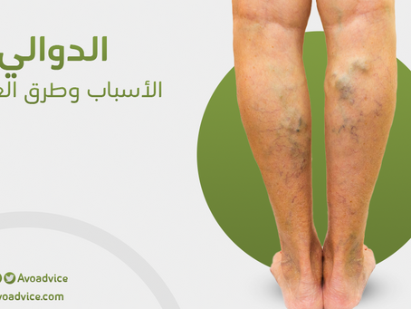 الدوالي | أعراضها وأسبابها وعلاجها الجذري | خلال أسبوع واحد فقط | حصريًا في المغرب