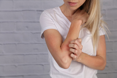 Different Eczema Triggers and How to Avoid Them