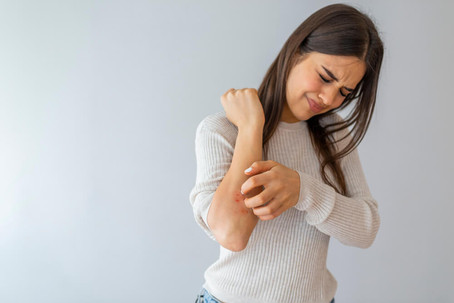 The Different Stages of Eczema