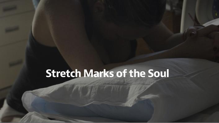 'Stretch Marks of The Soul' by Jessica Zucker