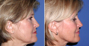 Reverse Skin Aging and Get Youthful Skin with Red Light Therapy and Near-Infrared Light Therapy