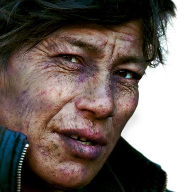 04-Dérmico_2011-Maida_25_años.jpg