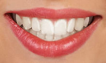 invisalign--clear-aligners.jpg