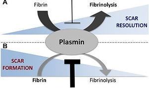 FIBRINOLYSIS SCARRING.jpg