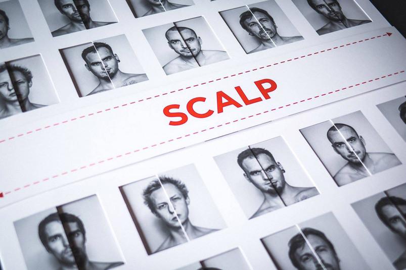 SCALP x VOH (1).jpg