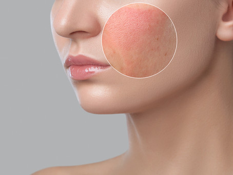 WHAT IS ROSACEA AND HOW CAN COLLAGEN HELP