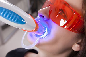 UV-Teeth-Whitening-1024x682.jpg