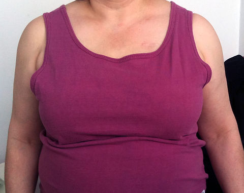 Woman with a right side partial breast p