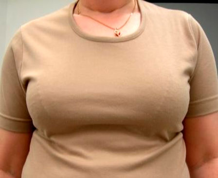Woman with a tight brown tee shirt using a New Attitude custom breast prosthesis.