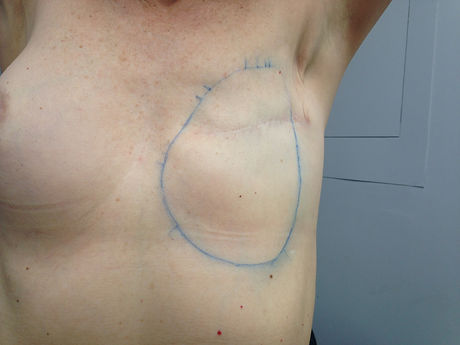 Front view of woman with a left side mastectomy with her left arm raised