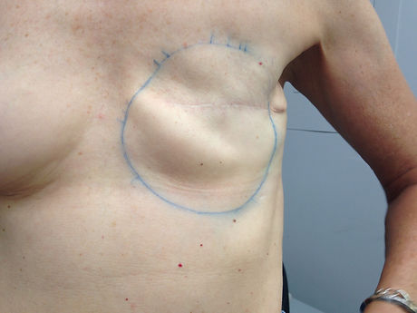 Front view of woman with a left side mastectomy.