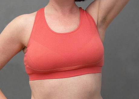 Woman with New Attitude bilateral breast prostheses
