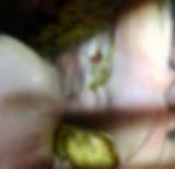 Ulcer from sharp enamel point.jpg