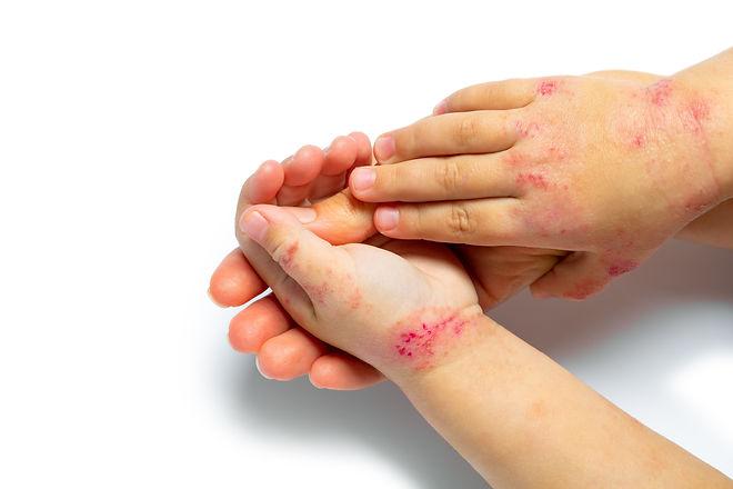 Child with Eczema