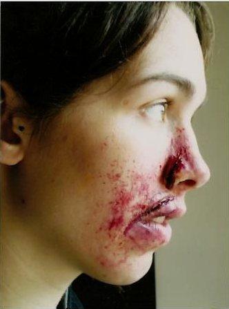 Effets spéciaux blessures
