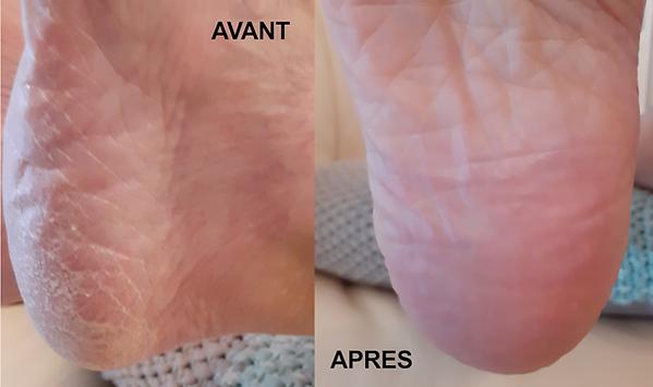 La beauté des pieds retrouvée grâce à Mavex, le Calluspeeling efficace en une séance, la qualité suisse au service de vos pieds, à retrouver dans votre institut de beauté à Genève Sweet Beauty, une prestation, un soin, un action efficace, agréable et recommandée