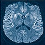 Neuroadioogy.jpg