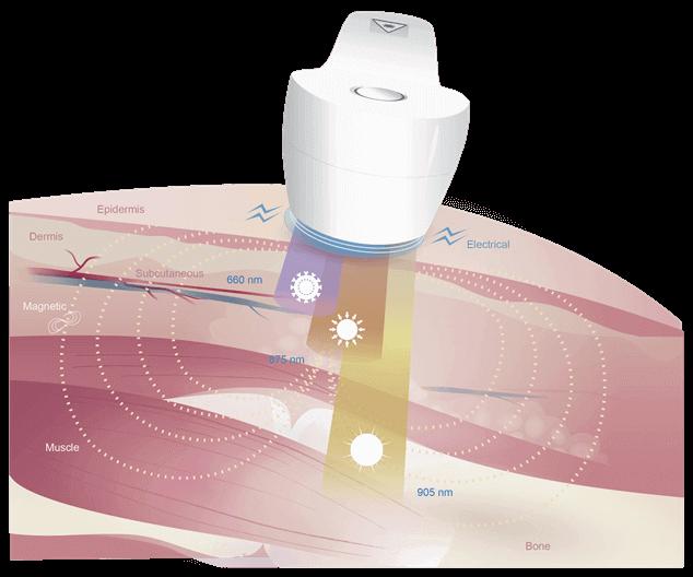 Super Pulsed Laser Pain Relief