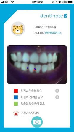 덴티노트 치아상태