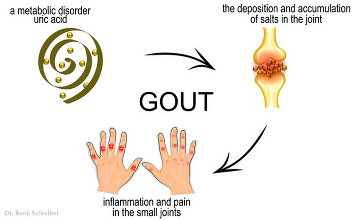 Gout process - How to get rid of gout pain fast