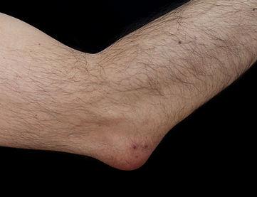 Bursitis disease treatment.jpg
