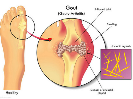 Gout and getting rid of those crystals