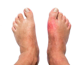 Gout pain treatment in London.jpg
