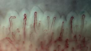 Undifferentiated Systemic Rheumatic Disease (UCTD)