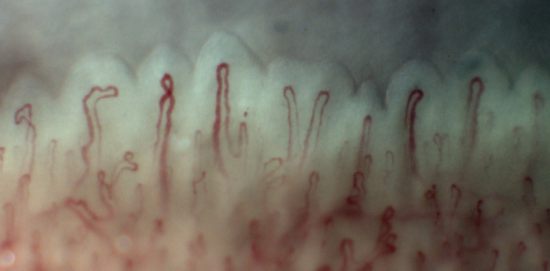 Blood vessels as seen through a microscope with finger nail fold capillaroscopy.