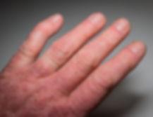 Psoriatic arthritis treatment in London.