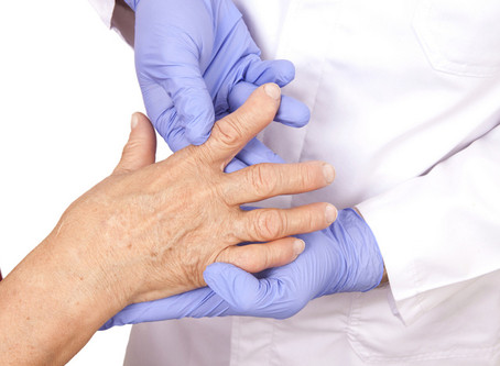 How to Prevent and Manage Arthritis Disease