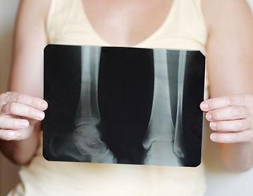 Low bone density, osteoporosis, osteopen