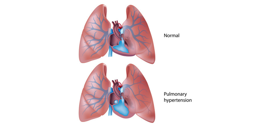 View of pulmonary hypertension in the lungs