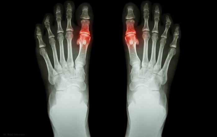 Gout , Rheumatoid arthritis ( Film x-ray both foot and arthritis at first metatarsophalangeal joint )