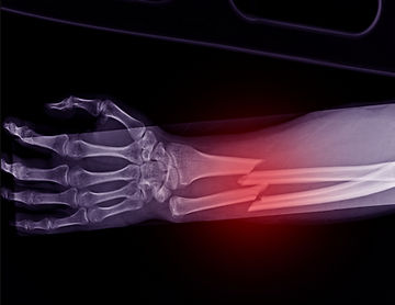 Fractures treatment in London.jpg