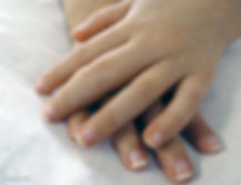 juvenile-idiopathic-arthritis.jpg