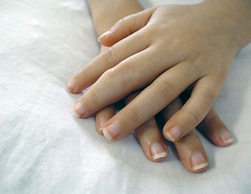 Juvenile idiopathic arthritis treatment.