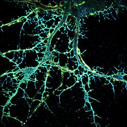 3D STORM: Neuron