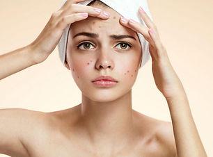 Acne derma360.jpg