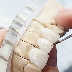 large_refaire-une-prothese-dentaire-elli