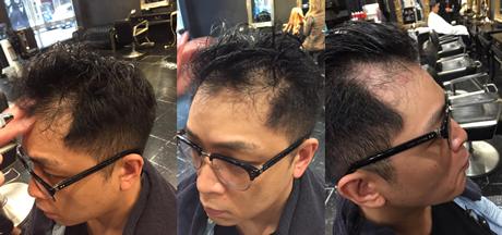 HairRegrowth2.png