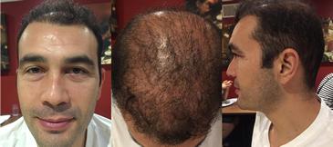 HairRegrowth.png