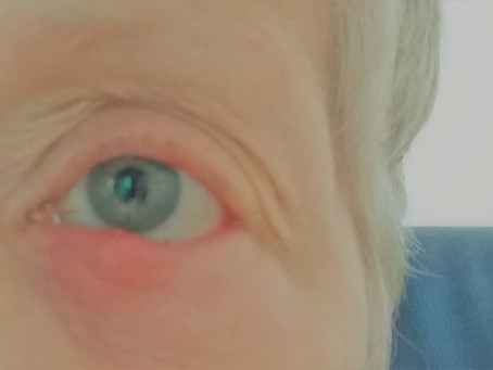 Styes In My Eyes and the Scourge of Polio