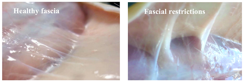 Healthy vs Restricted Fascia