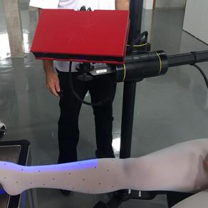 Métodos Alternativos de Fabricação de Próteses Transtibiais