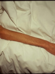 6-nan-goldin-gilles-arm-19931.jpg