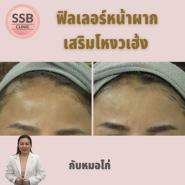 forehead filler ssbclinic