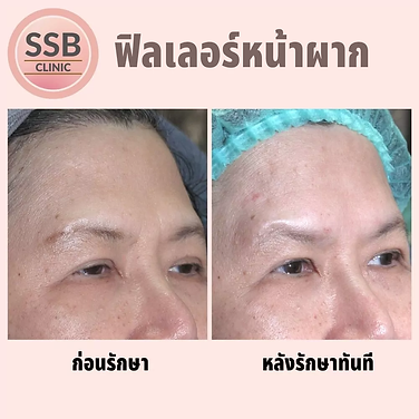 forehead filler ssbclinic.webp