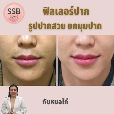 lip filler ssbclinic