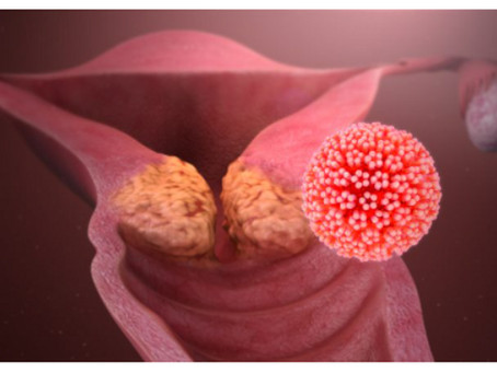 HPV Infection & Cancer Risk